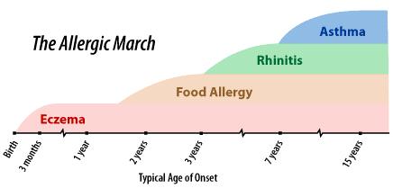 the-allergic-march-diagram